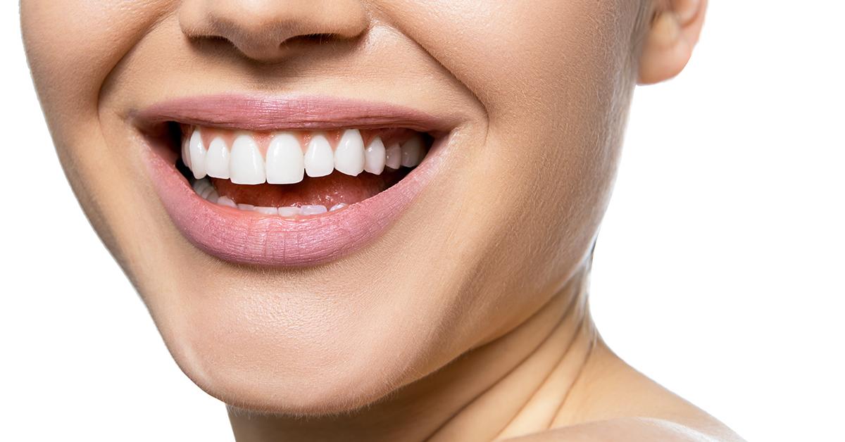 Biofilm dental, la principal causa de la formación de caries